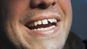 Dentists Scarborough UK
