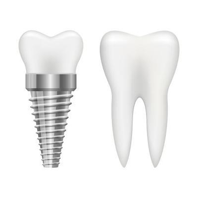 dental implant Scarborough placing a dental implant implant Dentist in Scarborough