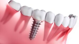 Dental Implant Scarborough Fixed tooth replacement options Gold standard tooth replacement.